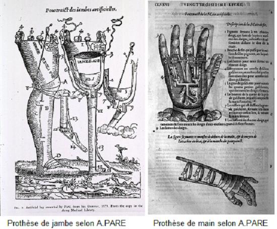 Prothèse chez Francesca